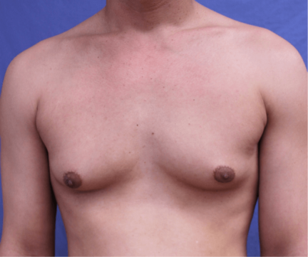 Everything you need to know about gynecomastia surgery_2